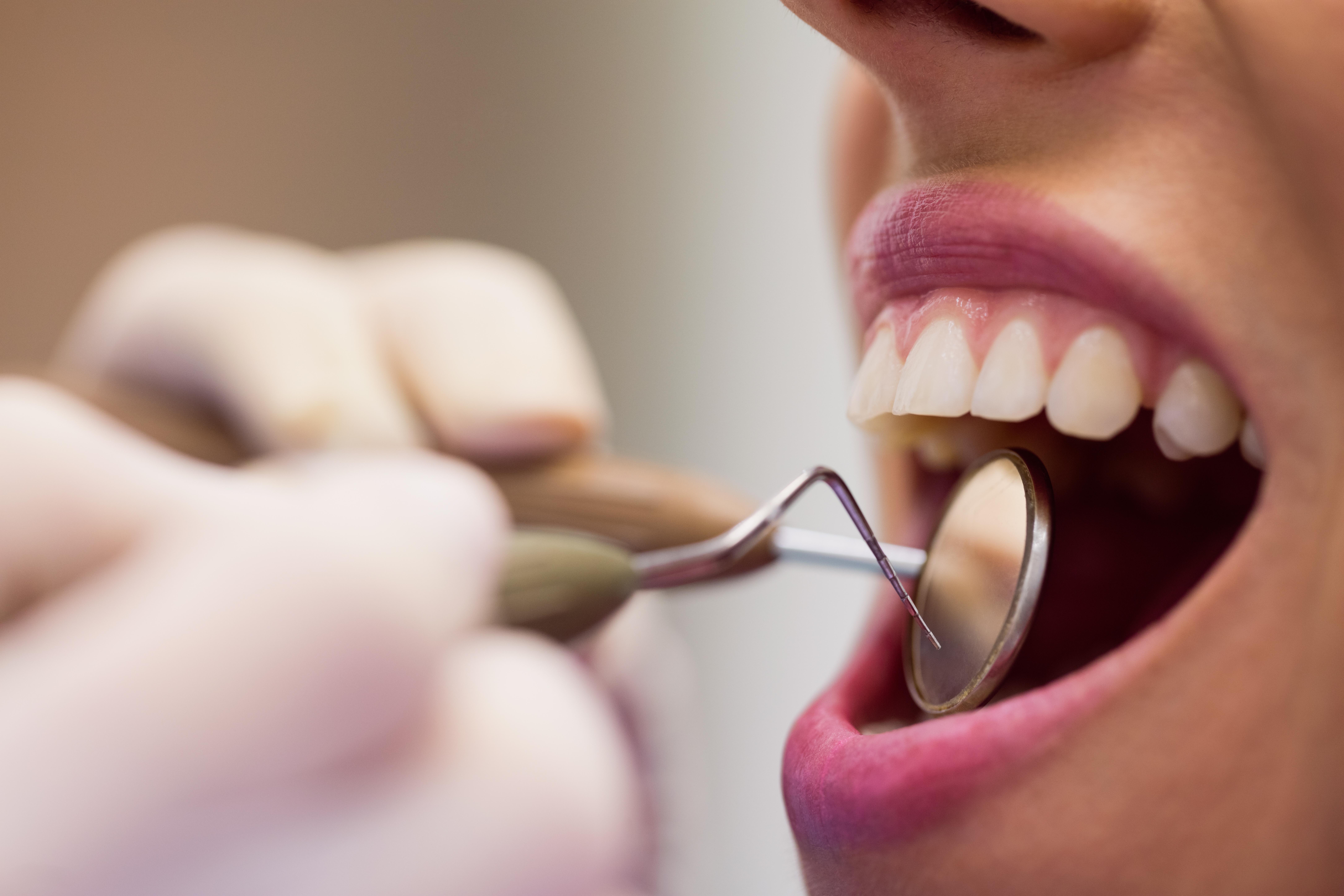 espejo dental